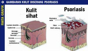 Apakah-Psoriasis-dan-Adakah-ia-Berjangkit-1